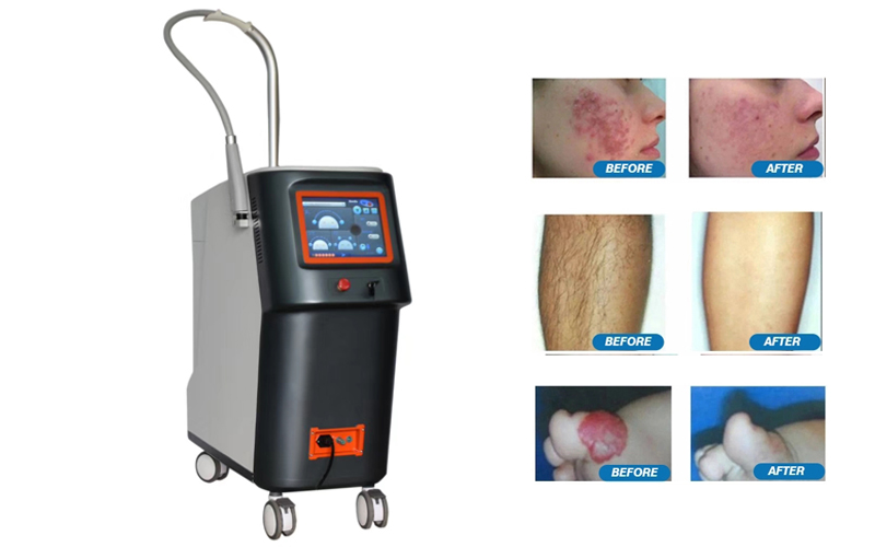 professional Q-switch long pulsed ND YAG laser hair removal diode laser